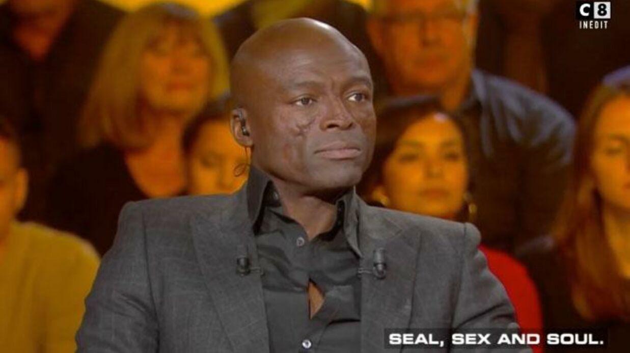 VIDEO Seal explique d'où viennent les impressionnantes cicatrices qu'il a au visage