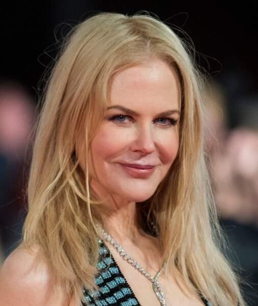 L'étrange visage de Nicole Kidman : Oui, vraiment, on se demande bien ce qui lui a pris