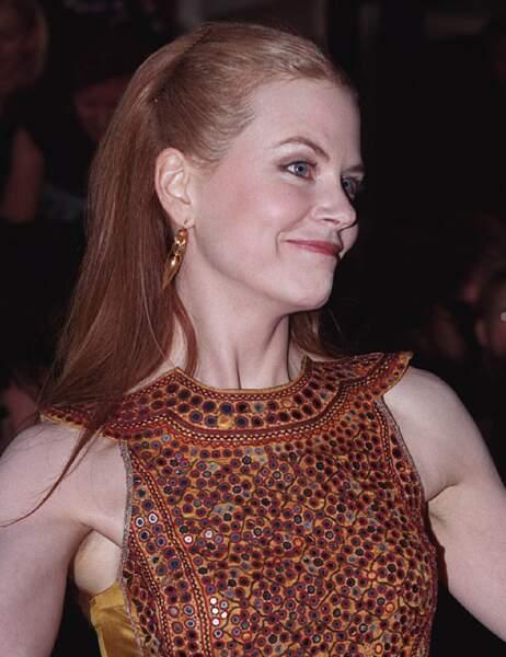 Septembre 1999, dernière fois que le front de Nicole Kidman s'est animé