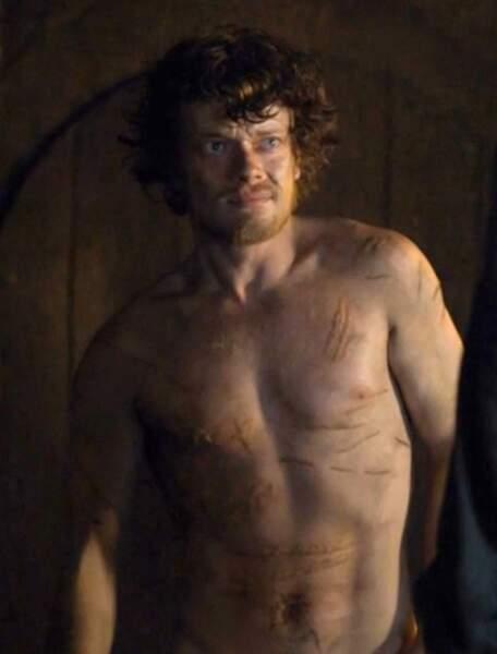 ... ce qui reste de Theon Greyjoy