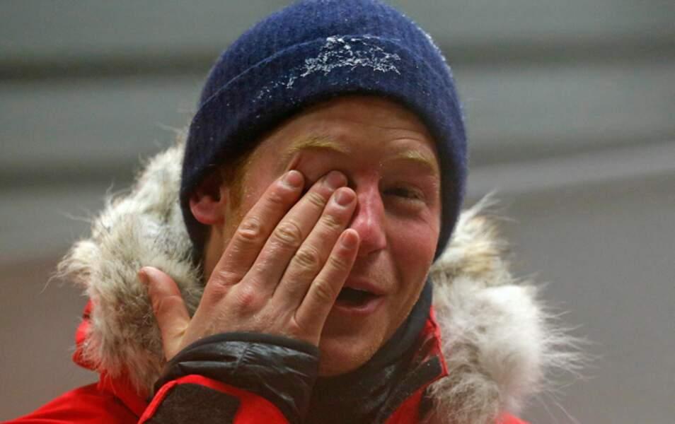 Pauvre Harry, il a les yeux qui pleurent de froid