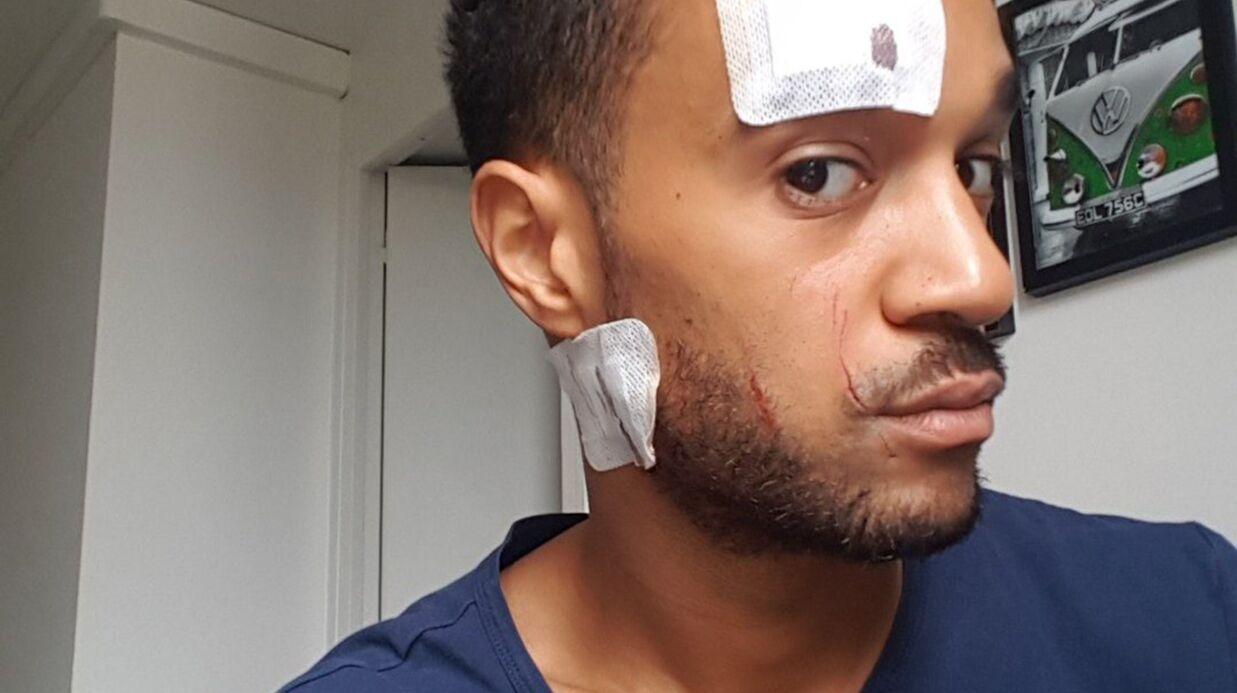 PHOTOS Morgan (Secret Story): agressé avec son compagnon, il a «failli y passer»