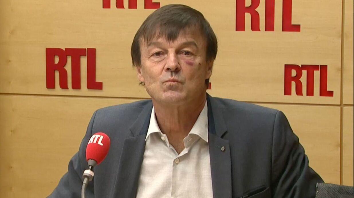 Nicolas Hulot: pourquoi le ministre de l'écologie est apparu aujourd'hui avec un œil au beurre noir