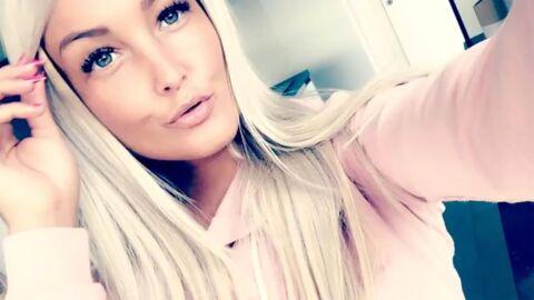 Aurélie Dotremont regrette de s'être fait gonfler les lèvres: «J'ai fait une grosse bêtise»