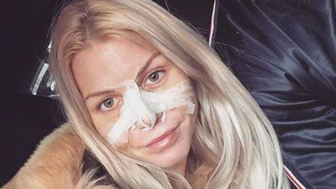 Jessica Thivenin et Thibault Kuro justifient leur chirurgie nasale commune