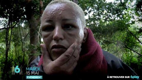 PHOTO Lââm: défigurée par les moustiques dans The Island Célébrités, elle est MÉCONNAISSABLE