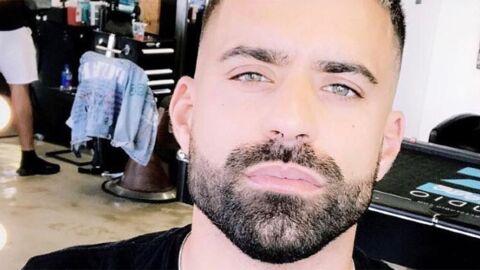 PHOTO Vincent Queijo (Les Anges 10) agressé, il s'affiche avec un coquard sur Snapchat