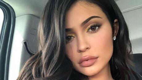 PHOTOS Kylie Jenner: on sait d'où vient LA GROSSE cicatrice qui parcourt sa cuisse