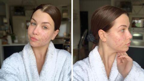 EnjoyPhoenix – Ses photos sans maquillage pour parler de son combat contre l'acné