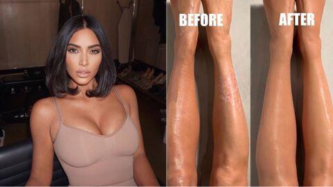 Découvrez comment Kim Kardashian camoufle son psoriasis