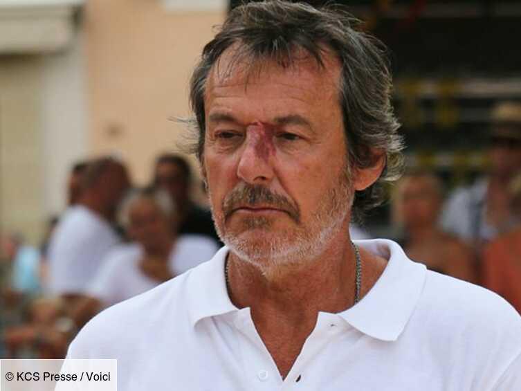Jean-Luc Reichmann : un an après le scandale, il évoque douloureusement Christian Quesada - Voici