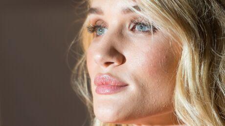 Comment bien protéger et hydrater vos lèvres au soleil?