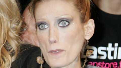 Mort d'Isabelle Caro: accusé, l'hôpital Bichat se défend