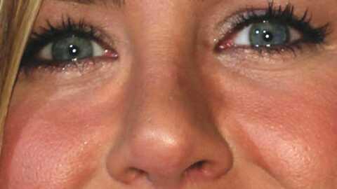 Jennifer Aniston pas hostile au Botox
