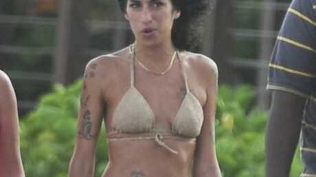 Amy Winehouse brûlée à une jambe