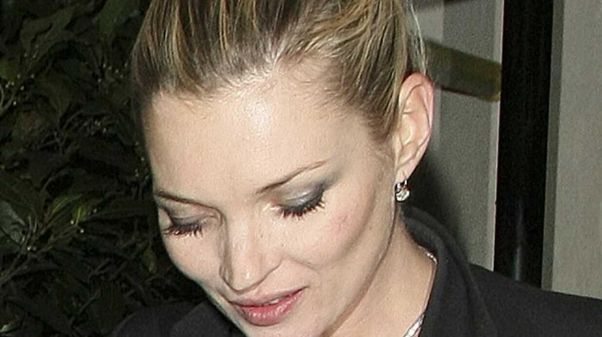 Kate Moss: 5 555 euros le baiser