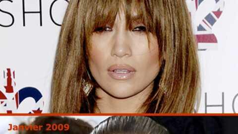 Jennifer Lopez a-t-elle fait de la chirurgie esthétique?