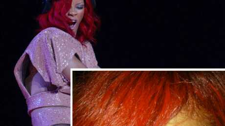 Rihanna: terriblement brûlée au front