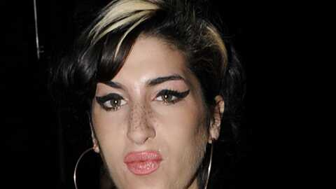 Amy Winehouse: regardez ses lèvres siliconées!