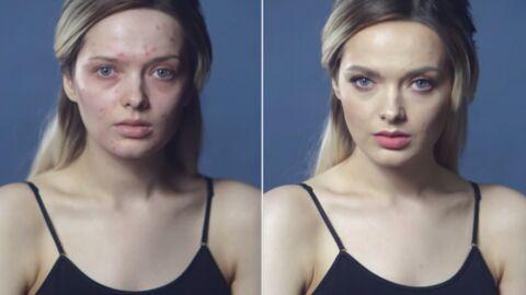 Em Ford: insultée pour son acné, la blogueuse dénonce le harcèlement dans une vidéo choc