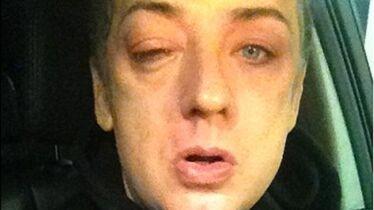 Une femme lui a tapé dans l'œil