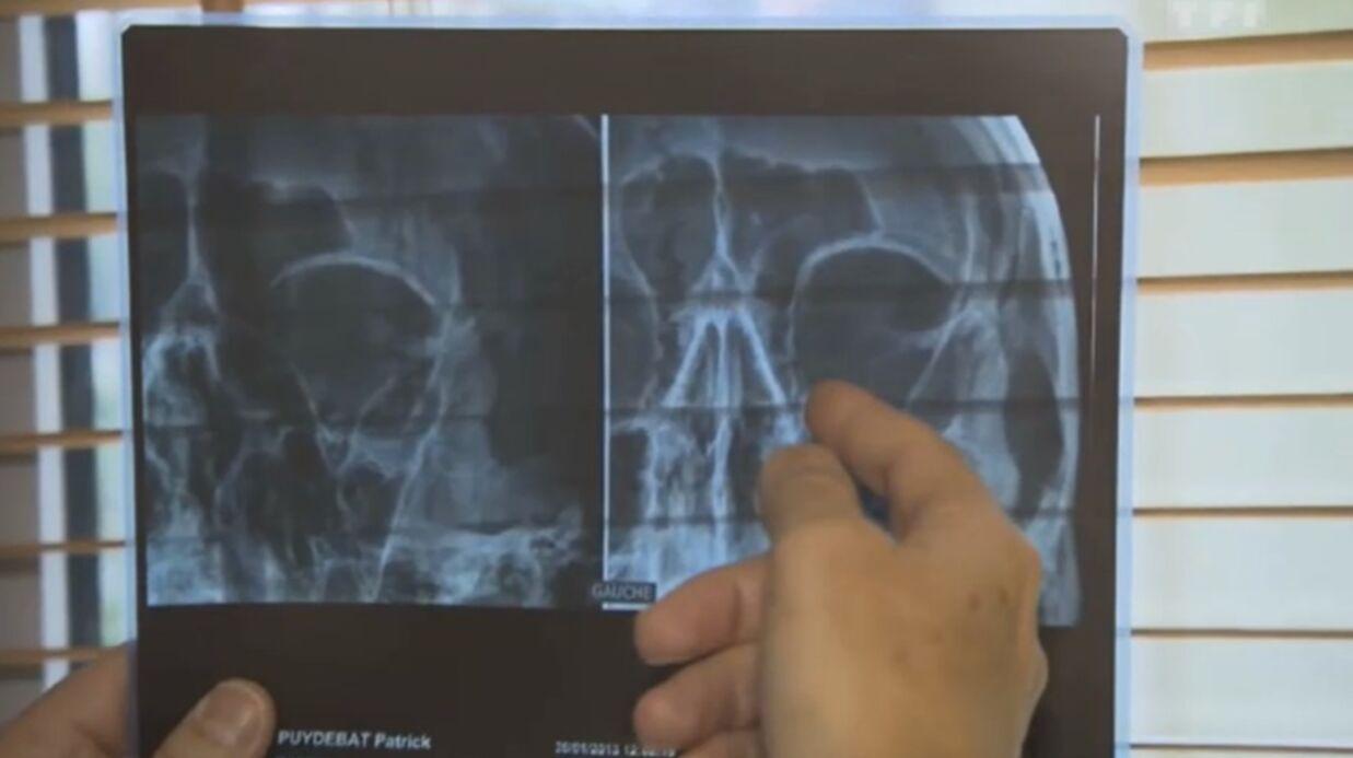 VIDEO Fracture pour Patrick Puydebat à l'entraînement de Splash!