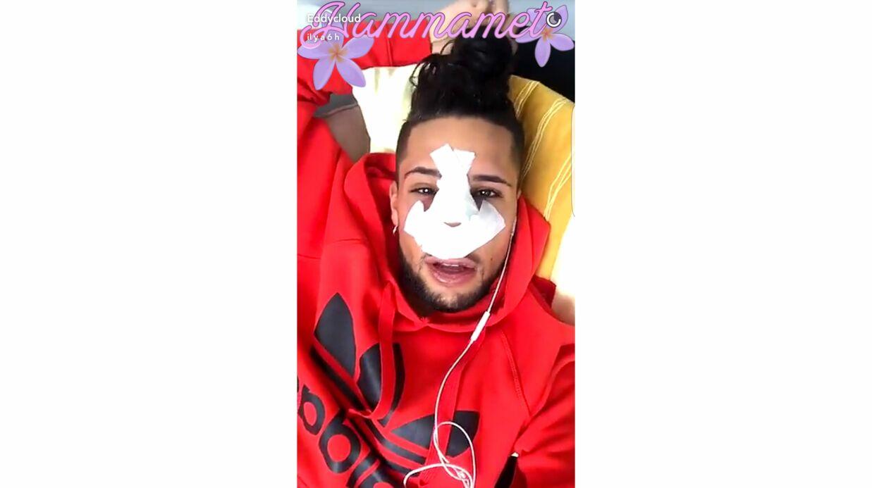 PHOTOS Eddy (Les Anges 8) s'est fait refaire le nez, il partage sa souffrance sur Snapchat