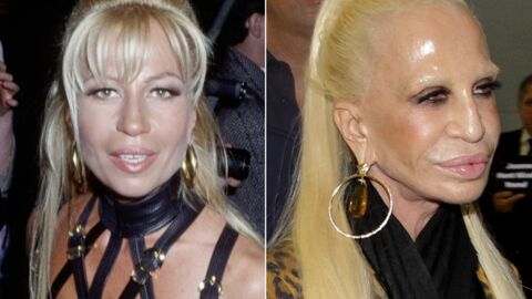Donatella Versace : son effroyable transformation physique en 14 photos