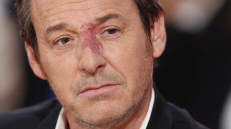 Petit, Jean-Luc Reichmann a été moqué par ses professeurs à cause de son angiome sur le nez