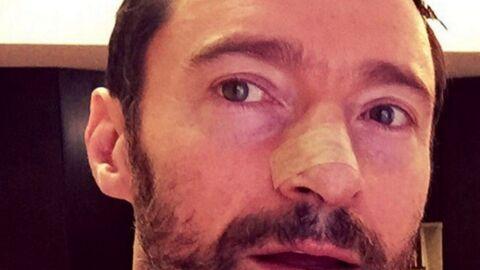 Hugh Jackman opéré pour la énième fois d'un cancer de la peau