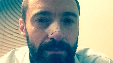 Hugh Jackman soigné pour un deuxième cancer de la peau