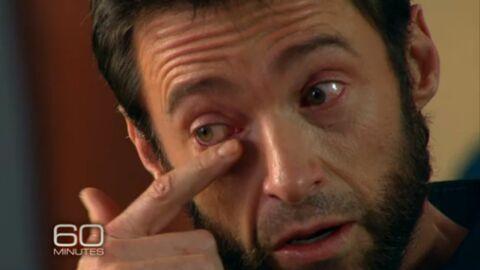 Hugh Jackman s'effondre en évoquant l'abandon de sa mère