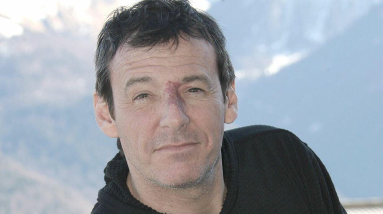 Jean-Luc Reichmann revient sur son terrible accident de moto