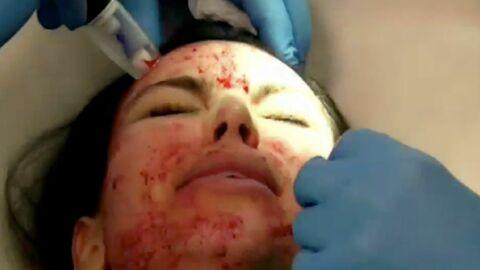 PHOTOS Le traitement de beauté sanglant de Kim Kardashian