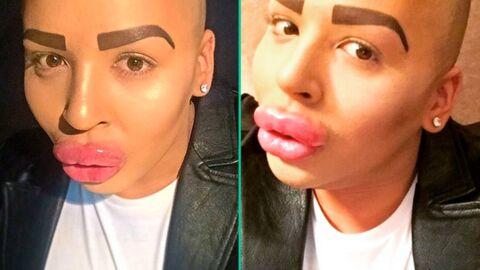Le fan/sosie raté de Kim Kardashian est terrifié à l'idée que ses lèvres dégonflent