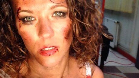 PHOTOS Lorie, tuméfiée et blessée pour le tournage d'un court-métrage choc