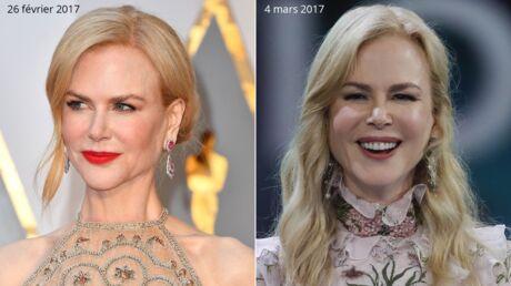 PHOTOS Nicole Kidman méconnaissable: en une semaine son visage a totalement changé