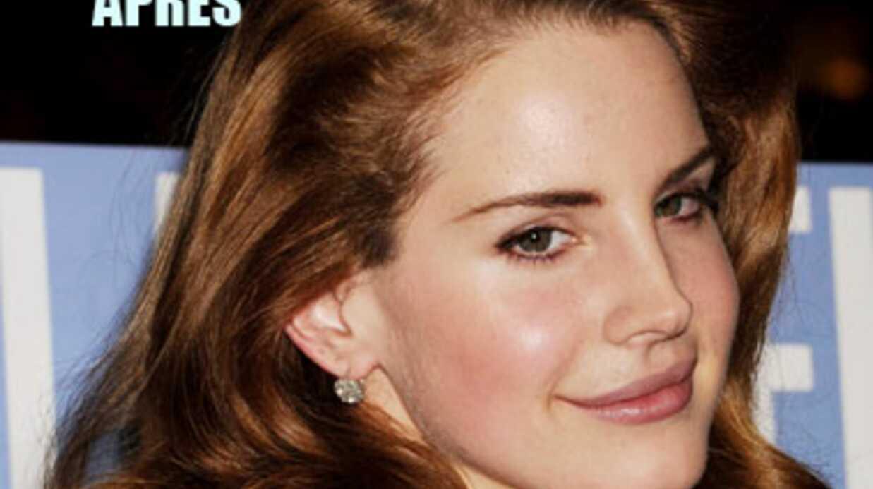 Lana Del Rey prétend que ses lèvres sont naturelles