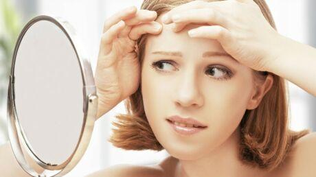 Cinq astuces naturelles pour lutter contre l'acné