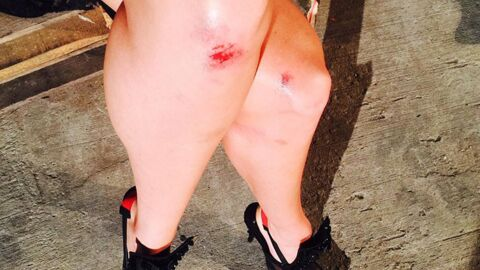 VIDEO Candice Swanepoel (Victoria's Secret) chute et se blesse en plein défilé