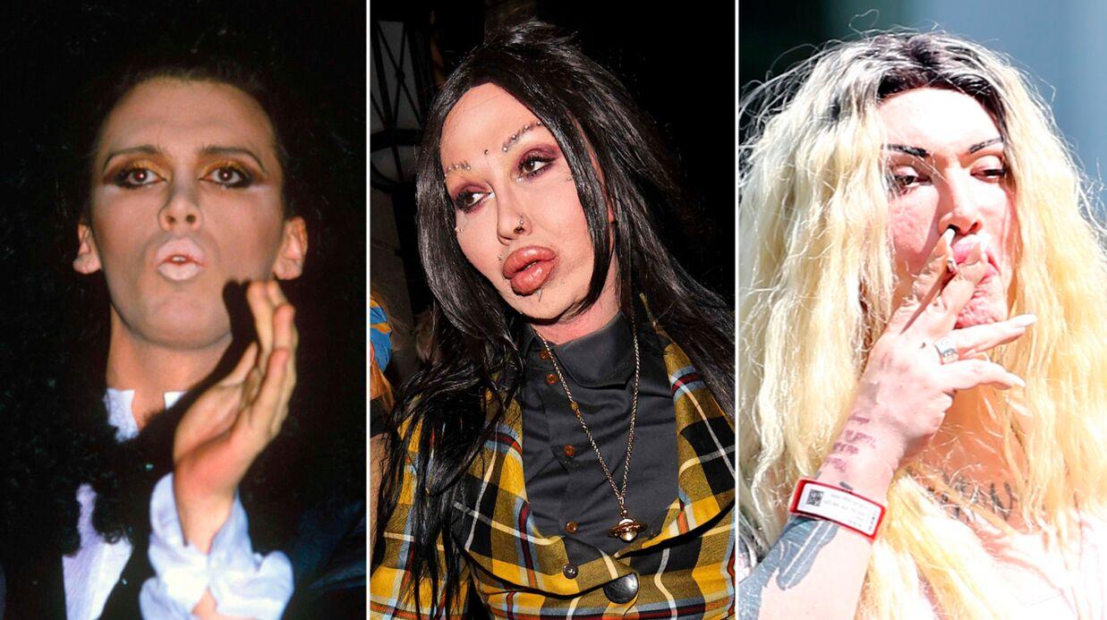 PHOTOS Le chanteur Pete Burns défiguré par la chirurgie: «Je suis Frankenstein»