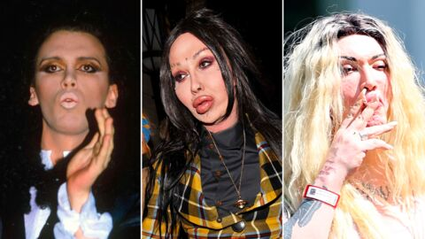 PHOTOS Le chanteur Pete Burns défiguré par la chirurgie : « Je suis Frankenstein »