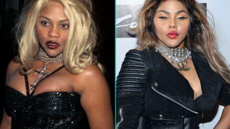 DIAPO Les stars qui ont (beaucoup) trop abusé de la chirurgie esthétique