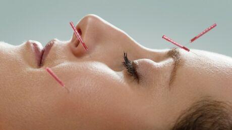 L'art de l'acupuncture esthétique