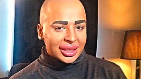 Le fan de Kim Kardashian défiguré par la chirurgie veut les mêmes fesses que son idole