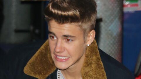 Un fan dépense 100 000 dollars pour ressembler à Justin Bieber (et c'est raté)