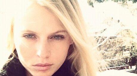 Le top Lauren Wasser, amputée de la jambe à cause d'une allergie à un tampon, raconte son combat