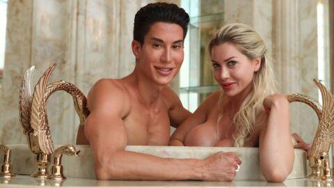 PHOTOS 380 000 dollars de chirurgie pour devenir Ken et Barbie: le résultat est flippant