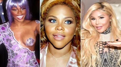 PHOTOS Méconnaissable, Lil'Kim abuse toujours plus de la chirurgie esthétique