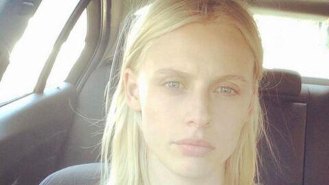 Lauren Wasser: amputée à cause de son tampon hygiénique, elle se livre sur son combat